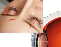 目の鍼灸イメージ