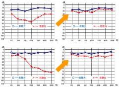 聴力グラフ